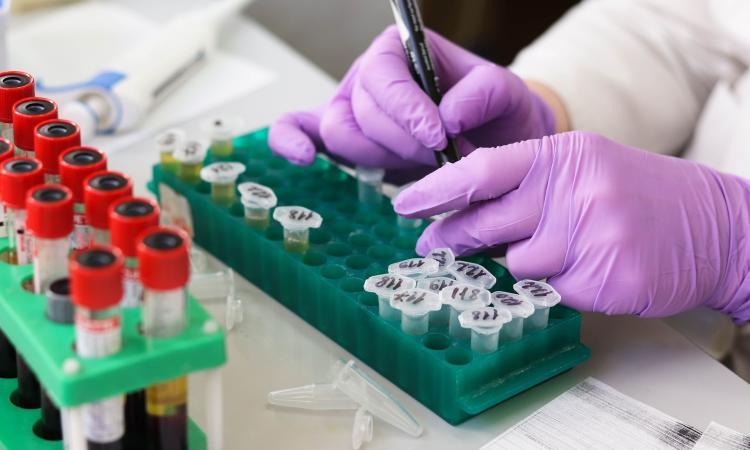 Coronavirus, 198 casi postivi nelle ultime 24 ore: i contagiati nelle Marche salgono a 2934