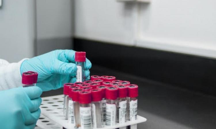 Coronavirus Marche, 16 casi in più rispetto a ieri: analizzati 597 tamponi